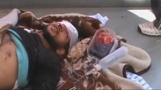 Screengrab of video purportedly showing wounded man in Tremseh (12 July 2012)