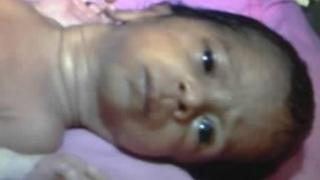 The baby girl in a hospital in Jaipur