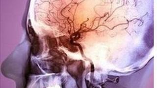 Angiogram o glaf strôc