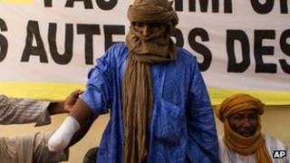 A Tuareg herder whose right hand was amputated last month by an Islamist group, shows his bandaged arm at an Amnesty International news conference in Bamako, Mali (20 Sept)