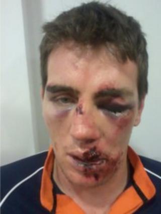 Ben Stewart after the attack
