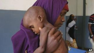 Woman holding undernourished child in Somalia