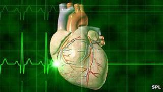 Flat line heart monitor