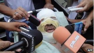 Fernando Vidal speaks to the press after being treated in hospital