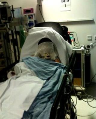 Boy injured in firework explosion