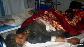 A survivor of the blast recovers in hospital in Farah province
