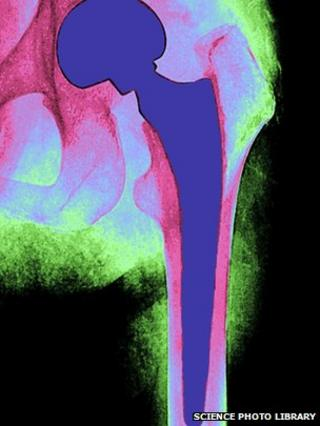 X-ray of an artificial hip