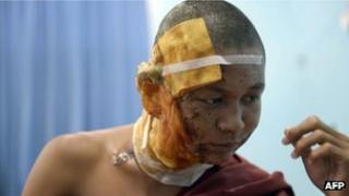 A monk injured in the police crackdown at a Burmese copper mine