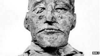 Mummy of Ramesses III