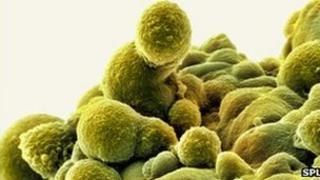 Close-up of prostate cancer cells
