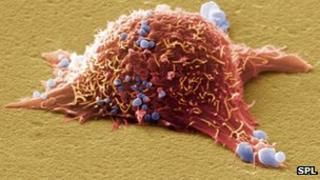 Skin cancer cell