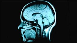 MRI scan - generic image