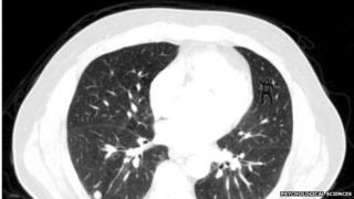 Lung scan