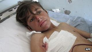 A wounded Afghan boy receives treatment at a hospital in Kunar province following a Nato air strike (13 February 2013)