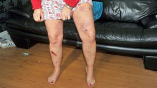 Woman shows injuries from bomb blast