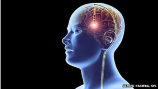 Artist illustration of deep brain stimulation