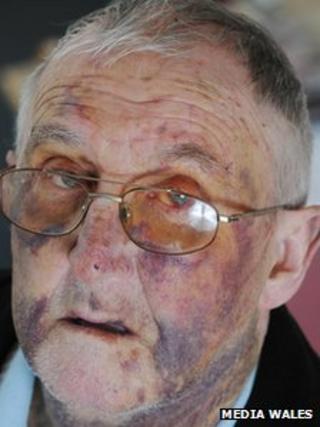 Kenfig Hill assault: Michael Bradshaw's appeal for help ... Michael Bradshaw Facebook