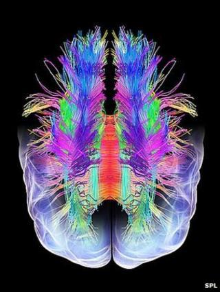 Scientists 'read dreams' using brain scans
