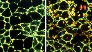 Normal muscle tissue (left) and muscle tissue affected by muscular dystrophy (right)