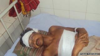 A man injured in the bear attack in Orissa