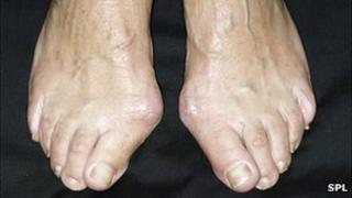 Bunions on a woman's feet
