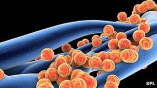 Staphylococcus aureus MRSA bacteria