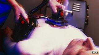picture of person being resuscitated