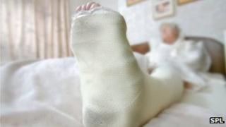 Elderly woman with a broken leg