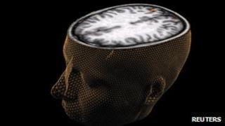 3d brain scan