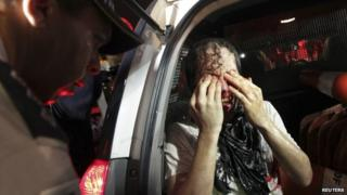 An injured protester rubs his eyes after being arrested in Brasilia on 17 June 2013