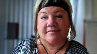Mandy Masters, thalidomide survivor