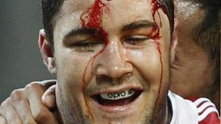 Bradley Barritt bleeds from a head injury