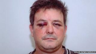 James Church's injuries