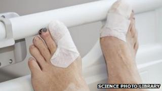 Generic picture of hospital patient's feet
