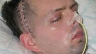 Derry civil servant Paul McCauley after he was beaten up in a sectarian attack in July 2006