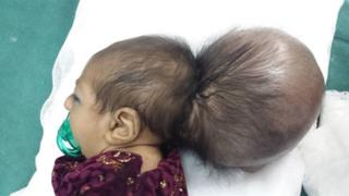 Asree Gul before the operation