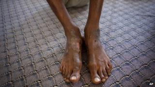 A man suspected of being a Gaddafi loyalist shows wounds on his feet at a detention facility in Misrata in September 2011