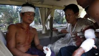 In this Tuesday, Oct. 1, 2013 photo, two injured Rakhine men sit in a car as they prepare to go to hospital in Thandwe, Rakhine State, western Myanmar.