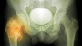 Bone cancer in the hip joint