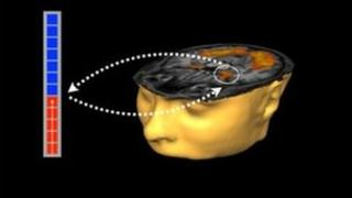 Image used in neurofeedback technique