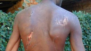 Zimbabwean victim of torture