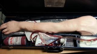 Medical prosthetic arm