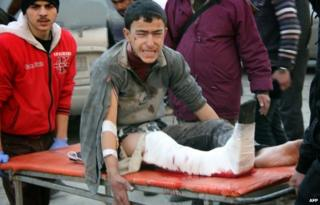 An injured youth on a stretcher in Aleppo's Maadi district (17 December 2013)