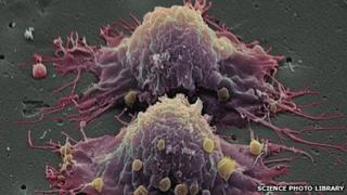 Bowel cancer cells dividing