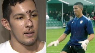 Richie Robins after his attack