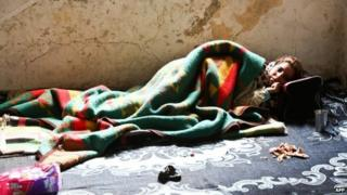 A sick Syrian refugee lies on the floor of an abandoned building in Istanbul, Turkey (27 January 2014)