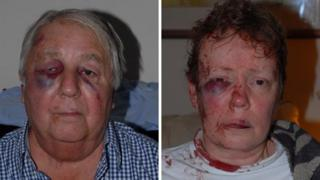 Attacked couple