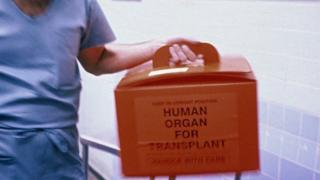 Donor organ for transplant
