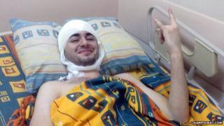 Grigory Simonyan on a hospital bed