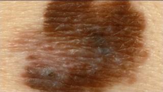 Melanoma ffyrnig
